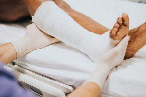 lesão do nervo fibular