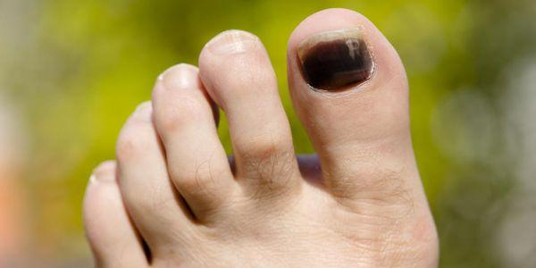 manchas escuras nas unhas dos pés