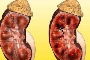 necrose cortical renal rcn