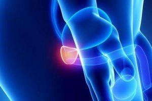 neoplasia maligna da próstata