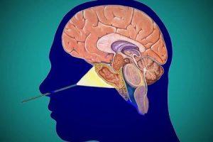 o que é estesioneuroblastoma ou neuroblastoma olfatório