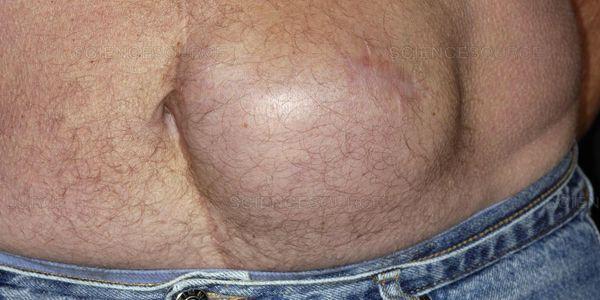 o que é hérnia incisional
