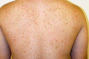 o que é mastocitose e como é tratado