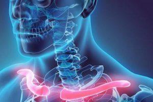 o que é osteólise