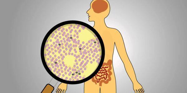o que é síndrome de radiação aguda
