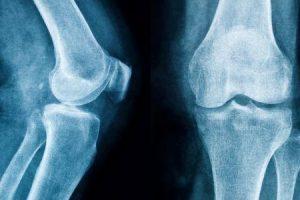 o que é um esporão de osso no joelho
