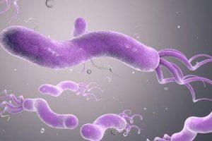 o que causa úlcera duodenal