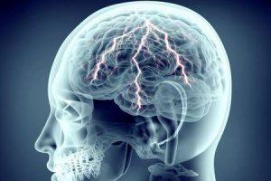 o que causa convulsões em adultos sem história