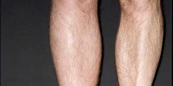 o que causa trombose venosa profunda ou dvt na perna