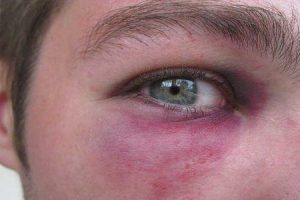o que pode causar fratura do olho ou fratura do soquete ocular e como ele é tratado