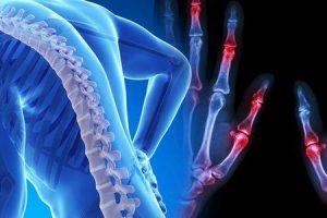 osteopetrose ou doença do osso de mármore