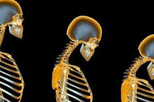 osteoporose induzida por corticosteroides
