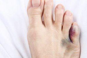 pé machucado