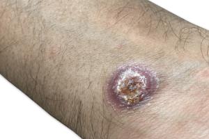 papulose linfomatóide