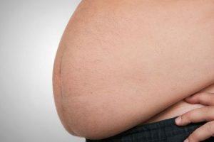 perigos relacionados à obesidade