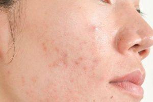 pode causar estresse acne em adultos