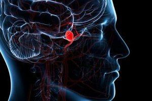 por que ocorrem aneurismas cerebrais
