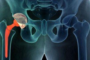 q e uma dor no quadril ou dor nas articulações do quadril sinais de sintomas e diagnóstico de doenças da articulação do quadril