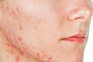 qual hormônio feminino causa acne
