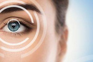quando se deve fazer uma cirurgia ocular a laser
