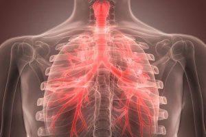 quanto tempo dura a bronquite