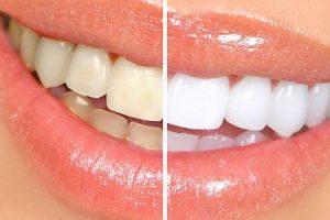 remédios caseiros para clareamento de dentes com cintas