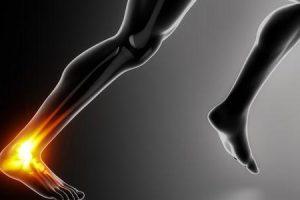 reparo de ruptura do tendão de Aquiles