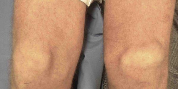 ruptura do tendão do quadríceps