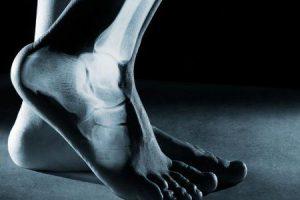 sintomas de fratura por estresse de fíbula causam tratamento diagnóstico