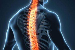 tumor da medula espinhal no pescoço