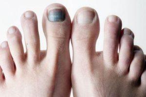 unha preta ou hematoma subungueal