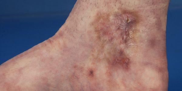 vasculopatia livedoide