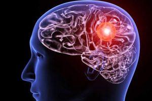 você pode testar um aneurisma cerebral