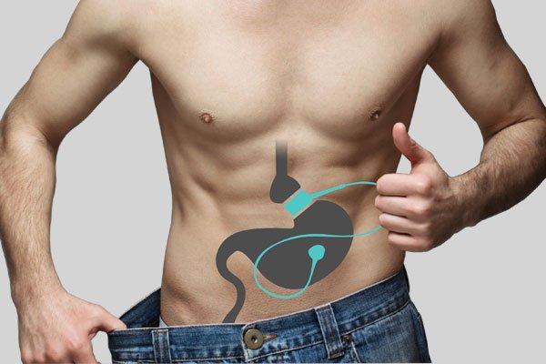 Cirurgia de Bypass Gástrico