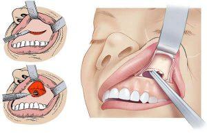 O que é Infecção Odontogênica