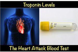 O que causa altos níveis de troponina?