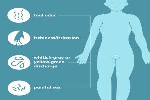 Quais são as principais causas da tricomoníase?