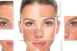 acido salicílico para acne