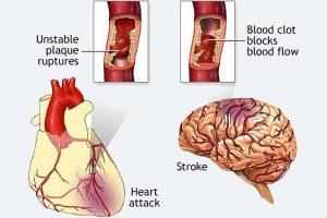 Os Stents do Coração são Perigosos?