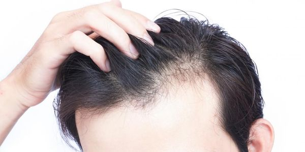 Como pode a deficiência de nutrientes levar à perda de cabelo