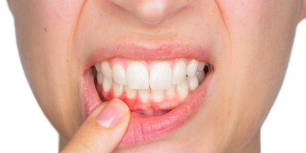 o que acontece se a doença periodontal não for tratada