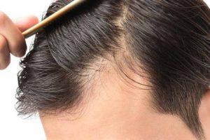 pode alopecia ser tratada naturalmente
