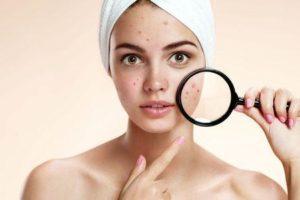 processos cirúrgicos comuns da acne