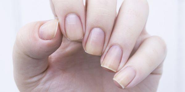 produtos químicos do verniz para as unhas que causam danos à pele