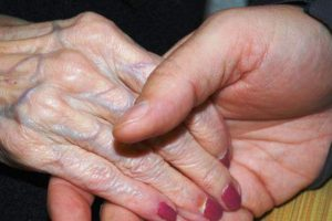 remédios caseiros para morféia
